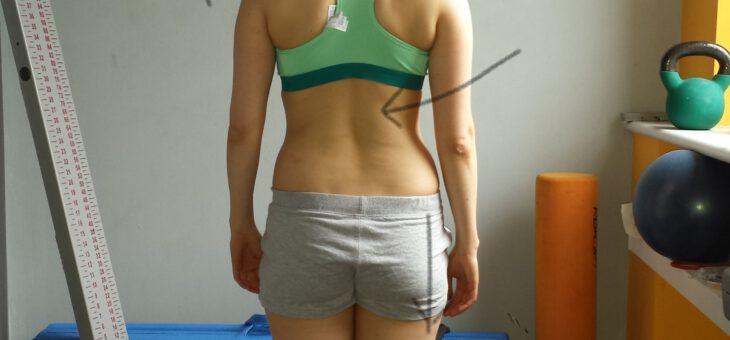 Skrzywienie kręgosłupa-opis przypadku.